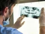 Комп'ютерна томографія зубів
