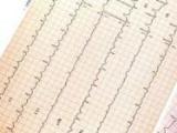 Популярное лекарство от облысения может кровообращения риск развития сердечных заболеваний